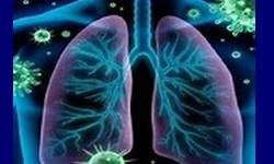 SRAG Síndrome Respiratória Aguda Grave associada a Covid-19 já matou 184.685 desde 2020