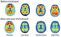 ALZHEIMER - Agência dos EUA  FDA aprova remédio contra Alzheimer: Aducanumab